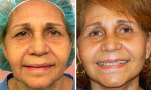 Cirugía nasal mujer de 58 años foto frontal
