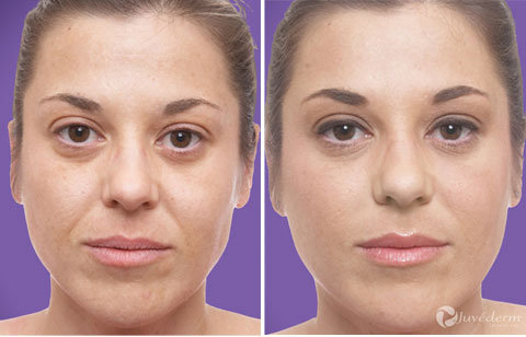 Gallery - Restylane and Juvederm: Before and After Photos - female (patient 1)