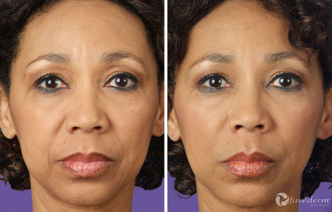Gallery - Restylane and Juvederm: Before and After Photos: female (patient 2)