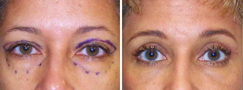 Fotos antes y después - Cirugía de los párpados o blefaroplastía