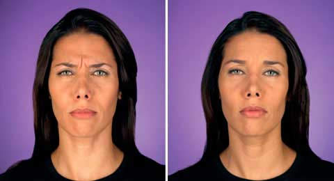 Before and After Photo Botox - Gallery: female (patient 1)
