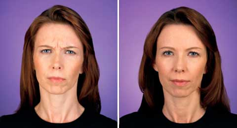 Before and After Photo Botox - Gallery: female (patient 2)