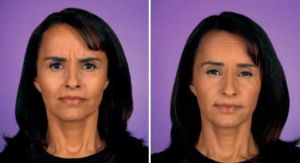Before and After Photo Botox - Gallery: female (patient 3)