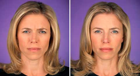 Before and After Photo Botox - Gallery: female (patient 5)