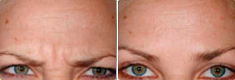 Before and After Photo Dysport - Gallery: female (patient 1)
