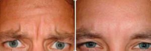 Before and After Photo Dysport - Gallery: male (patient 2)