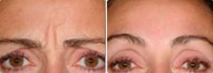 Before and After Photo Dysport - Gallery: female (patient 3)