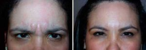 Before and After Photo Dysport - Gallery: female (patient 4)