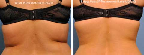Skin Tightening Gallery - Before and After Treatment photos: female patient 3, back view