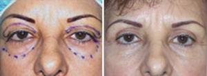 Cirugía de los párpados o blefaroplastía - Fotos antes y después