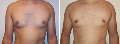 Gynecomastia Gallery - Before and After Photos - male patient 2 (front view)