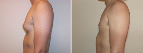 Gynecomastia Gallery - Before and After Photos - male patient 3 (left side view)