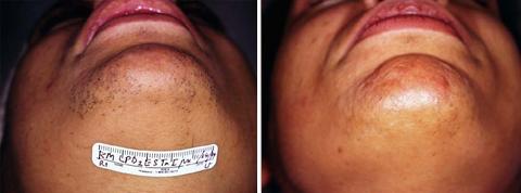 Before & After Photos: Tratamientos depilatorios 2