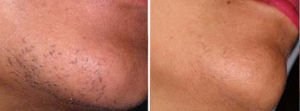 Hair Removal Gallery: Before and After Photos - male patient, oblique view