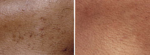 Hair Removal Gallery: Before and After Photos - male patient, neck