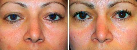 Cirugía nasal 43 años foto de frente de mujer