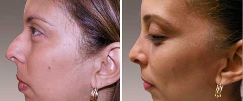 Nasal Surgery Before and After Photo Gallery: woman (left side view)