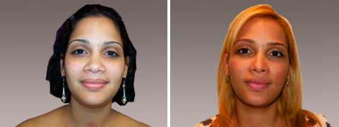 Nasal Surgery Before and After Photo Gallery: female patient (front view)