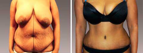 Galeria de Fotos Abdominoplastía -Se trata de una mujer de 44 años de edad que tuvo tres hijos y una histerectomía, foto 1