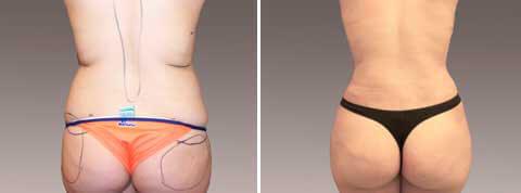 Galeria de Fotos Gluteoplastía: Ella es una mujer de 27 ańos que deseaba una cintura más estrecha y glúteos más llenos para una apariencia con más curvas, paciente 3