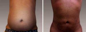 Galeria de Fotos Liposucción - paciente 9