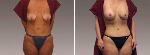 Galeria de Fotos Mommy Makeover : female pacient 2