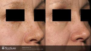 rejuvenecimiento de piel mujer mano derecha foto
