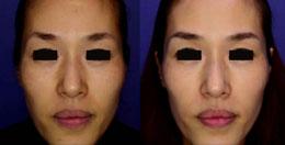 rejuvenecimiento de piel foto foto frontal de la mujer