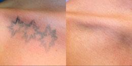 Galeria de Fotos Eliminación De Tatuajes - foto 6