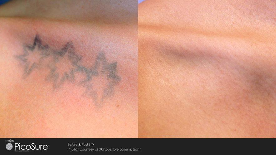 Galeria de Fotos Eliminación De Tatuajes - foto 3