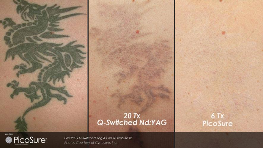 Galeria de Fotos Eliminación De Tatuajes - foto 2