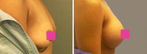 Galeria de Fotos Aumento de Senos - Ella es una mujer de 30 años con dos niños, quien fue sometida a un aumento del senos con 330 cc de solución salina en la derecha, 340cc en la izquierda - foto 2