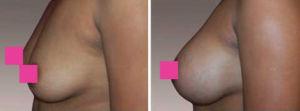 Ella es una mujer de 39 años con 3 hijos , 5'2 y 121 libras quien deseaba tener senos muy llenos.