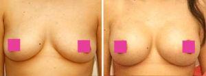 Galeria de Fotos Aumento de Senos - Se trata de una mujer de 39 años de edad, con un pecho bastante amplio quien tuvo un Aumento de senos con implantes de 360cc de solución salina a través de la areola, foto 1