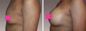 Galeria de Fotos Aumento de Senos - Ella es una mujer de 39 años con 3 hijos , 5'2 y 121 libras quien deseaba tener senos muy llenos, foto 2