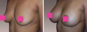 Ella es una mujer de 39 años con 3 hijos , 5'2 y 121 libras quien deseaba tener senos muy llenos. Foto de la mano izquierda.