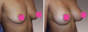 Ella es una mujer de 39 años con 3 hijos , 5'2 y 121 libras quien deseaba tener senos muy llenos. Foto de la mano derecha.