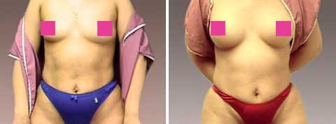 Galeria de Fotos Aumento de Senos - Ella es una mujer de 32 años de edad, 5'4 & 154 libras, que quería equilibrar las curvas de sus caderas con sus pechos, foto 1