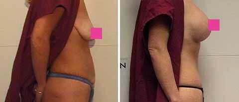 Galeria de Fotos Levantamiento de Senos con Implantes - paciente 1