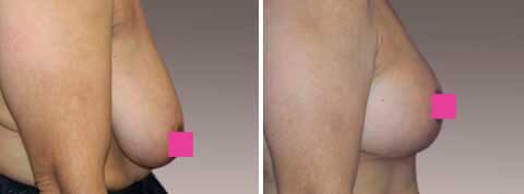 Galeria de Fotos Reducción de Senos - Ella es una mujer de 40 años con senos grandes ligeramente bajos, paciente 1