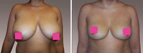 """Galeria de Fotos Reducción de Senos - Ella es una mujer de 29 años de edad, 5'5 """"y 145 libras para Reducción de Senos, paciente 2, foto 1"""