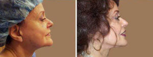 Eyelid Surgery Before and After Photos Gallery - 72 yr old woman