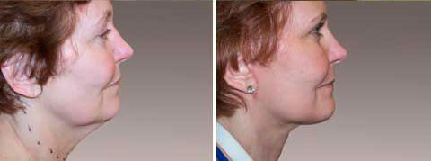 Facelift/Neck Lift Gallery : Before and After Treatment photos - female patient 2