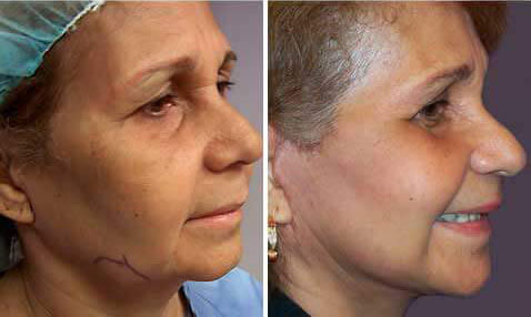 Eyelid Surgery Before and After Photos Gallery - 58 yr old woman, oblique view