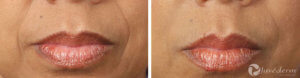 Gallery - Restylane and Juvederm: Before and After Photos - female (patient 2)