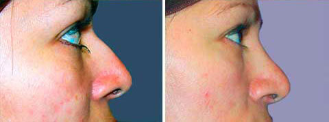 Nasal Surgery Before and After Photo Gallery: 43 yr old woman (side view)