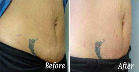 Skin Tightening Gallery - Before and After Treatment photos: female patient 2, right side oblique view