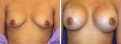 Yager Esthetics - Before and After Photos: Breast Augmentation