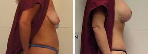 Yager Esthetics - Before and After Photos: Breast Lift with Implants