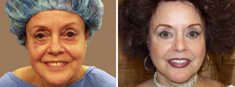 Eyelid Surgery 72 yr old woman before and after photo